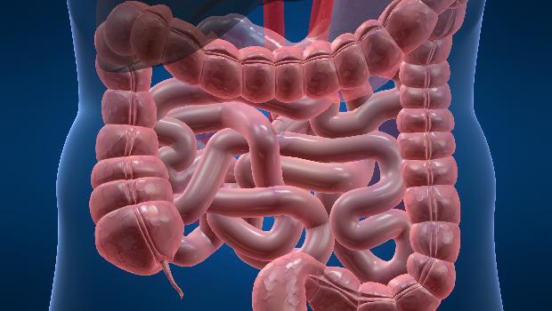 Doenças Inflamatórias Intestinais, como identificar?
